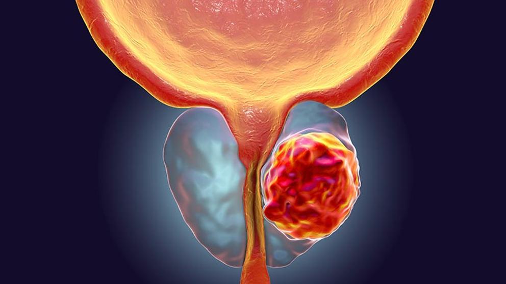 Cancer de prostata genetica