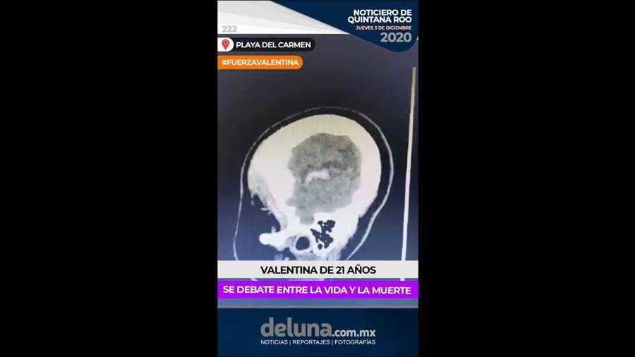 Noticiero de Quintana Roo | Jueves 3 de diciembre 2020. Noticias en tiempo real